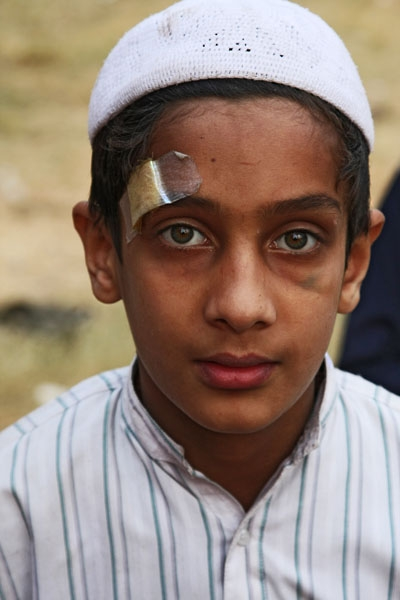 Spedire foto di Boy with bandage in Delhi di India come cartolina postale elettronica